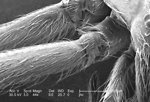 Free Stock Photo: Under a magnification of 44x, this scanning electron micrograph (SEM) depicted the \'hairy\' surface of a number of legs of a venomous brown recluse spider, <i>Loxosceles reclusa</i>, found inhabiting a Kentucky farm.